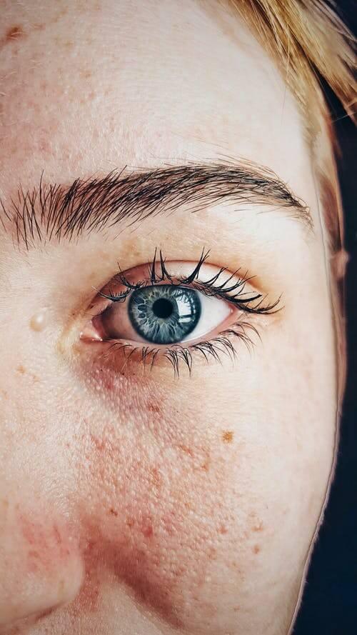 Pool Chlorine Allergy: Chlorine Rash Signs and Symptoms