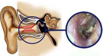 swimmer's ear, swimmers ear, otitis externa, external ear infection, outer ear infection, earache, ear infection, ear canal infection, bacteria