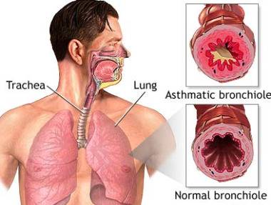 Pool Asthmatic Bronchitis Causes Of Lung Infections