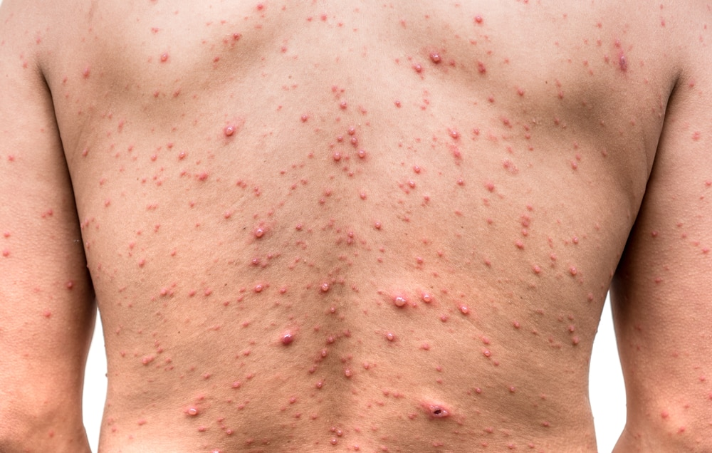 Itchy Hot Tub Rash Folliculitis Prevention And Treatment